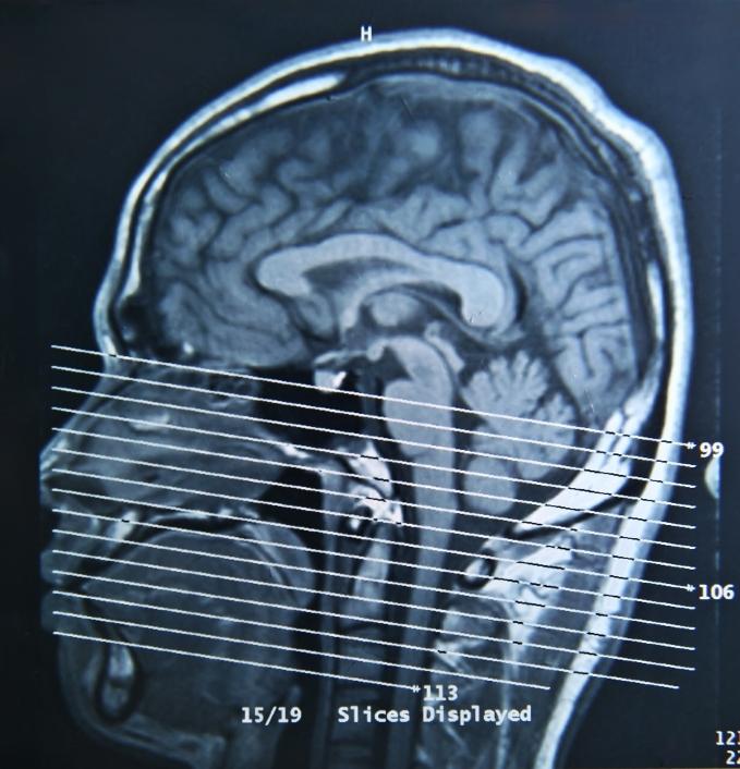 Risonanza Magnetica di un Cervello - Imaging del Cervello e Disturbo Bipolare