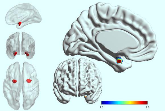 Disturbo Bipolare o Depressione? Amigdala
